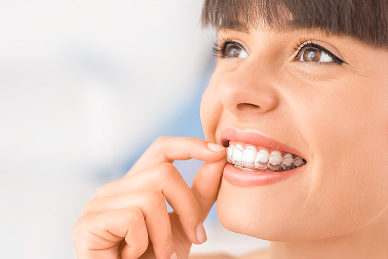 Sterling Heights invisalign